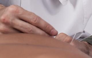 Direcção e informação Acupuntura e cirurgia einstein