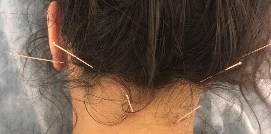 acupuntura no pescoço verdades mentirosas