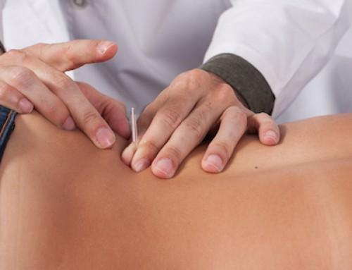 Tratar dor lombar e sagrada com acupuntura