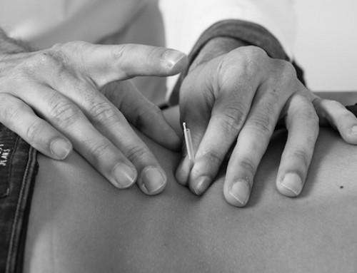 Tratar dor nas costas com acupuntura