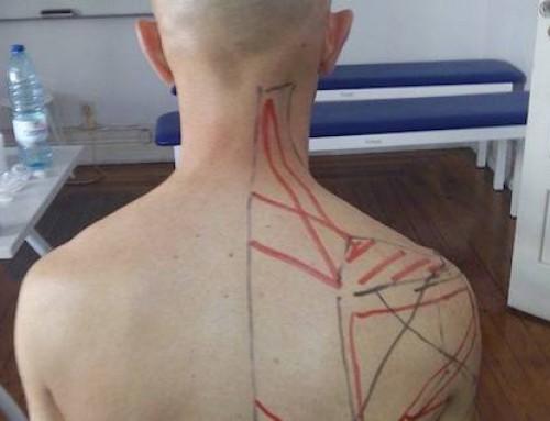 Dor de costas e falta de força no membro superior