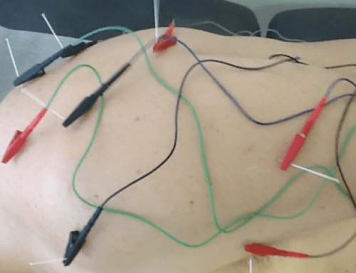 Dor no ombro com irradiação pelo braço tratada com acupuntura