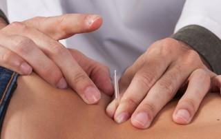 Empregabilidade fores bom acupuntor