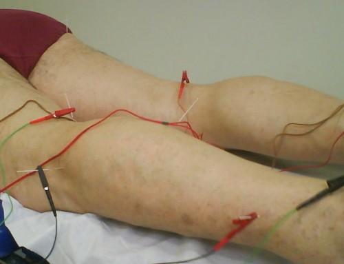 RED Como tratar dor ciática de forma simples e eficaz com acupuntura
