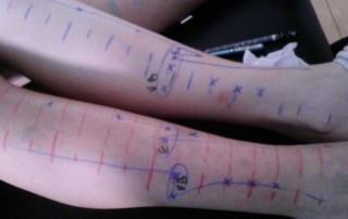 Podemos estudar pontos de acupuntura