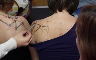 Pontos de acupuntura existem