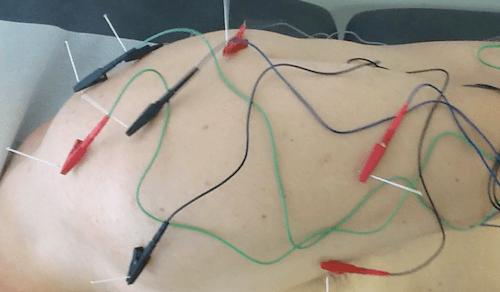 dor no ombro por acidente de trabalho acupuntura