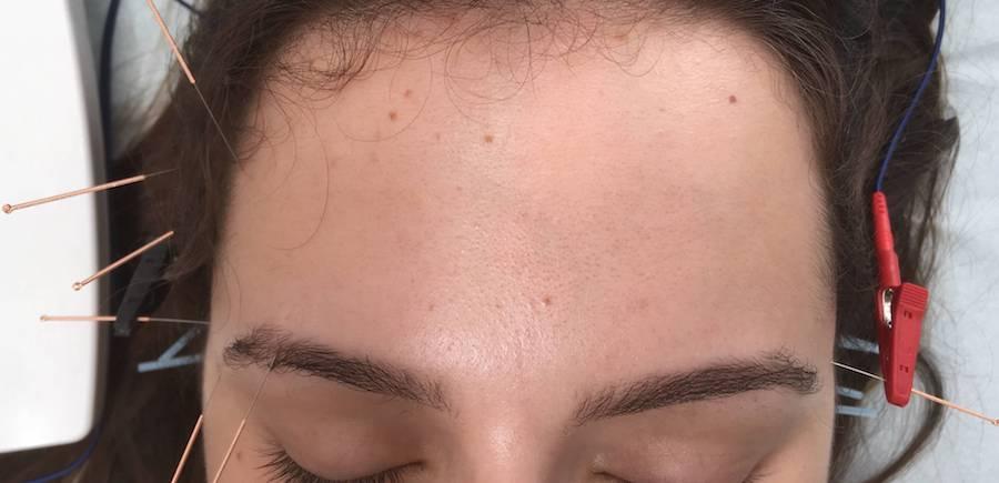 tratar enxaqueca com acupuntura