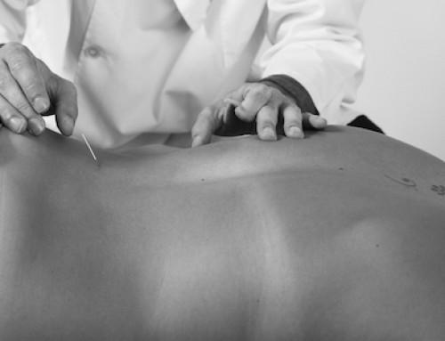 Dor nas costas tratada com acupuntura