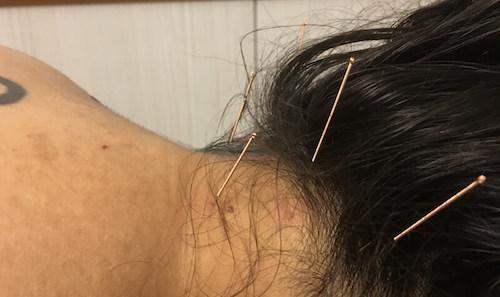 dor na nuca acupuntura