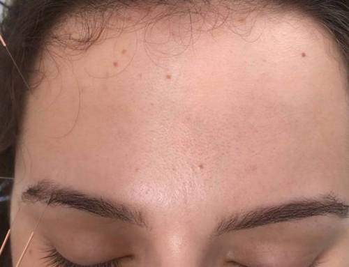 Dor de cabeça tratada com acupuntura