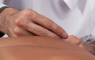 prática da acupuntura