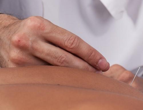 Como sustentar a prática da acupuntura
